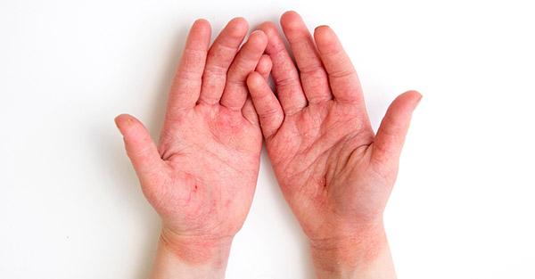 Covid rash - Remotederm - examples