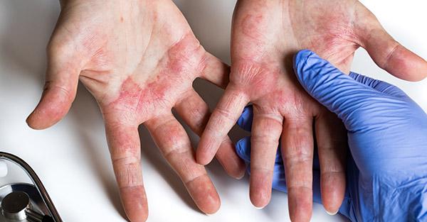 Covid rash - how to prevent - Remotederm