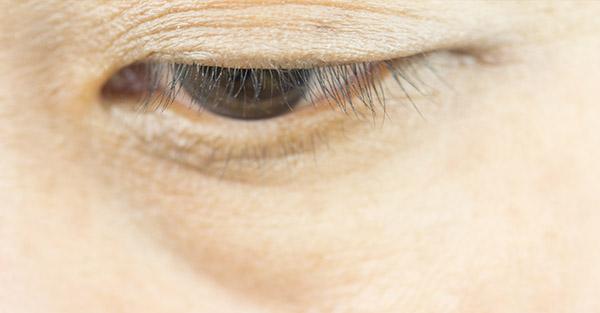 Eyelash Thinning - Remote derm