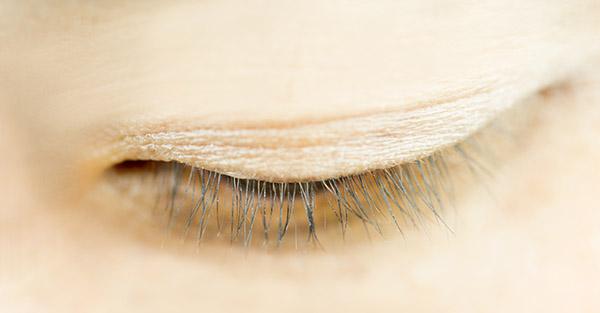 Eyelash Thinning Samples - Remotederm