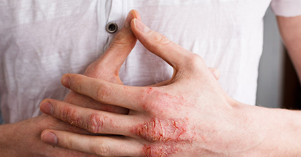Hand dermatitis RemoteDerm