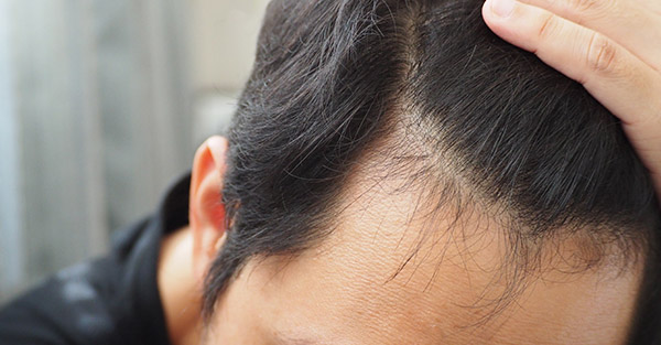 Male Pattern Hair Loss - Androgenic Alopecia - Non-scarring hair loss