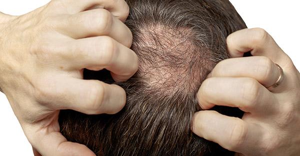 Male Hair Loss - Remotederm
