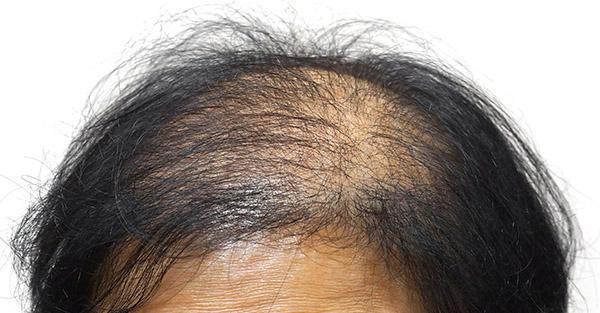 Male Pattern Hair Loss