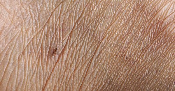 Remotederm - Aging Skin