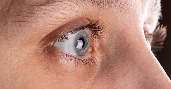 Remotederm - Eyelash Thinning