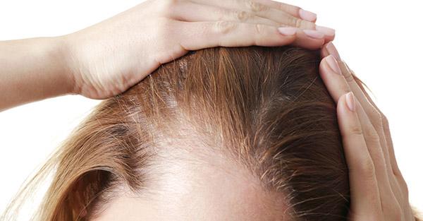 Remotederm - Hair Loss