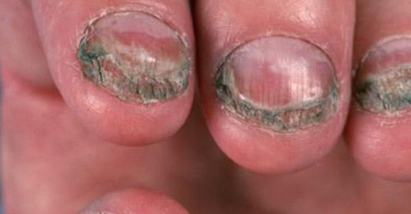 Toenail fungus - Examples - remotederm