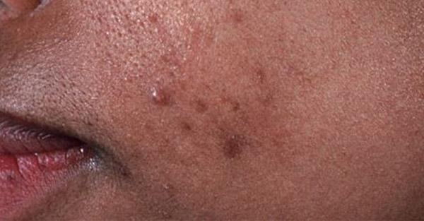 acne samples remotederm