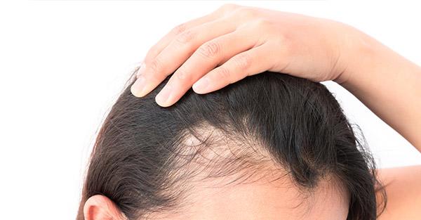 hair loss image - remotederm