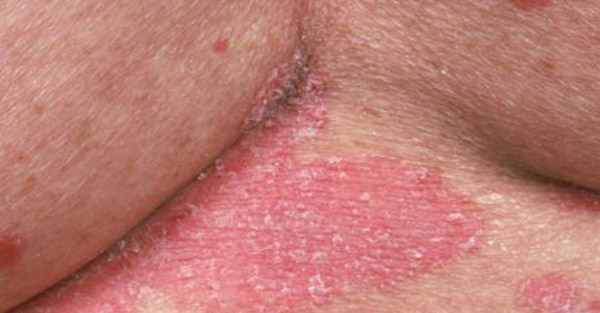 psoriasis_skin conditions