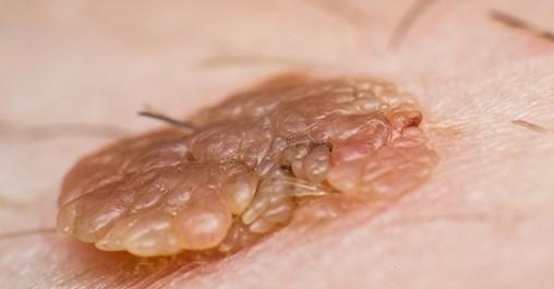 remotederm genitalwart treatment