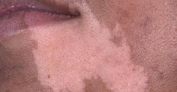 vitiligo_Remotederm